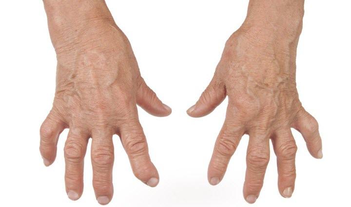 Пораженные ревматизмом суставы пальцев рук