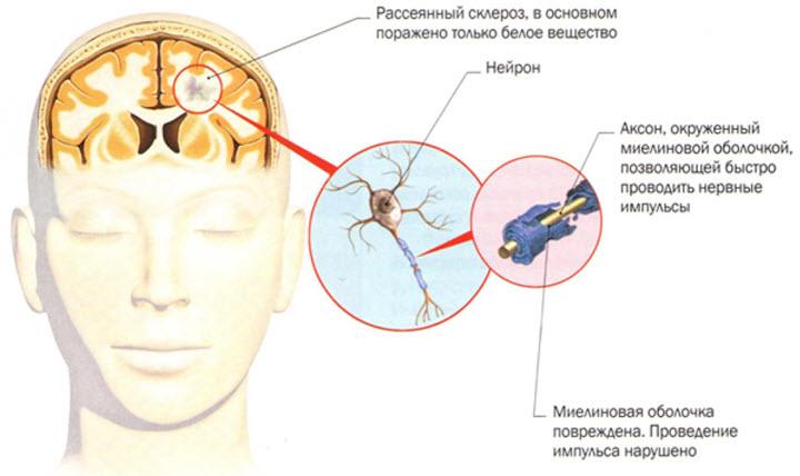 Причины появления рассеянного склероза