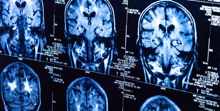 МРТ для выявления рассеянного склероза