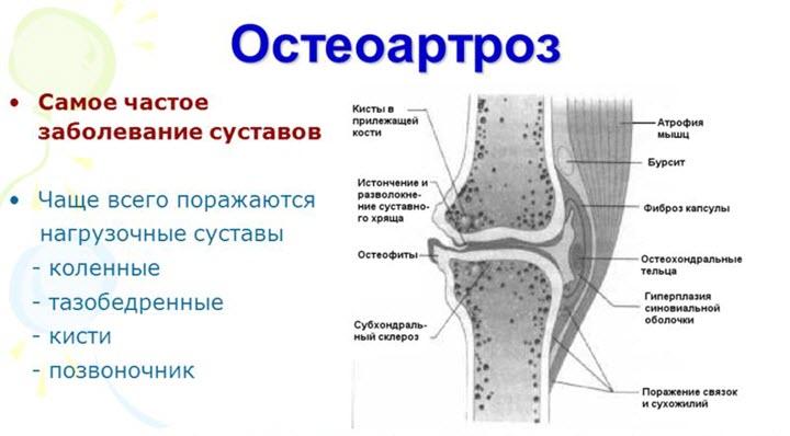 Артрозо-артрит акромиально ключичного сочленения и его лечение