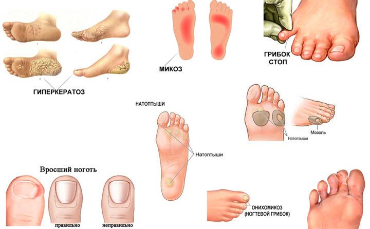 Классификация заболеваний ног