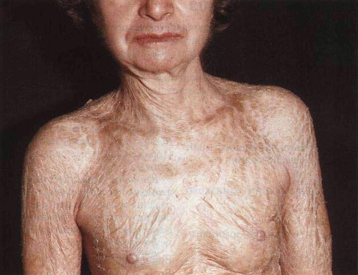 Ихтиоз кожи